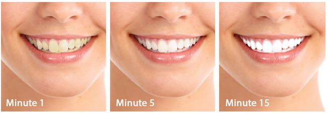 Gleaming Teeth Whitener – Professional Teeth Whitening System or Hoax?