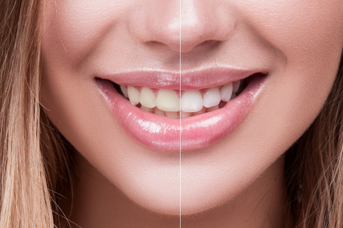 Restricted Better Smile – Get Strong Teeth & Better Smile!